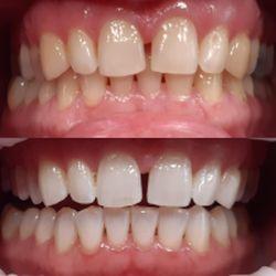 bělení zubů před a po