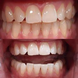 bělení zubů ajna dental